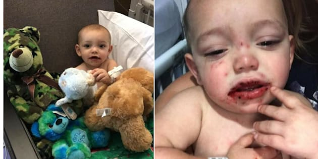 Mother warns parents after baby infected with cold sores