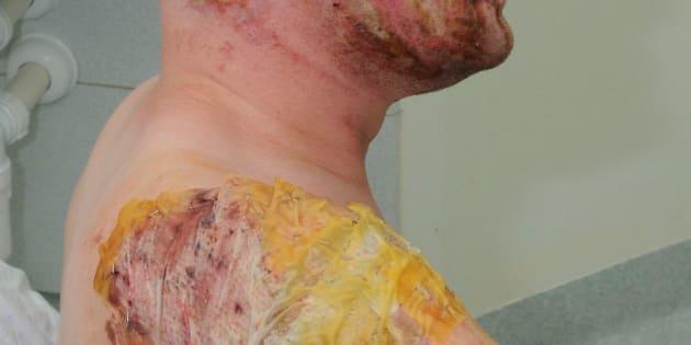 Undated police handout of an acid attack survivor (archive photo)