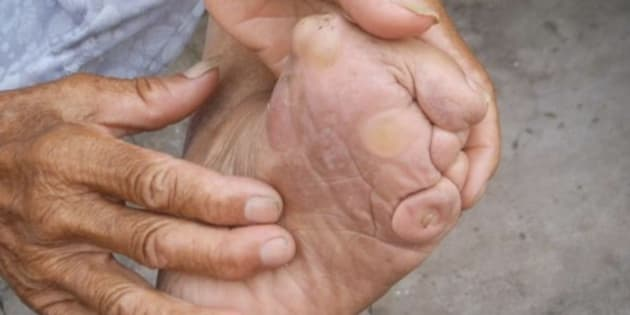 The feet of Chinese girls were broken and bound as early as the 10th century. It is widely believed that the deformed feet, which were placed in small embroidered shoes, would attract a better husband. A newstudy suggests feet were bound for another reason.