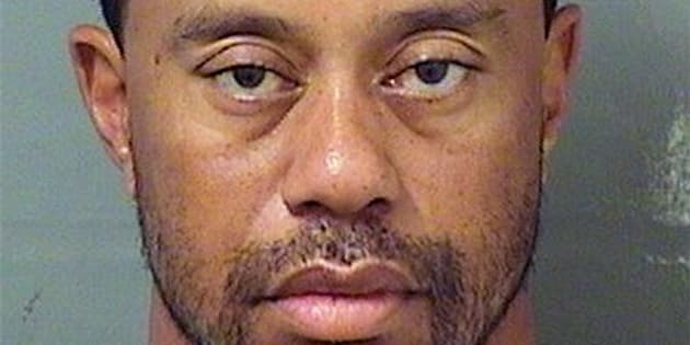 Tiger Woods said Monday he is seeking treatment related to his back pain and sleeping disorder.