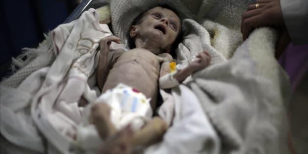 La pequeña Sahar Dofdaa, poco antes de morir por desnutrición en el este de Damasco.