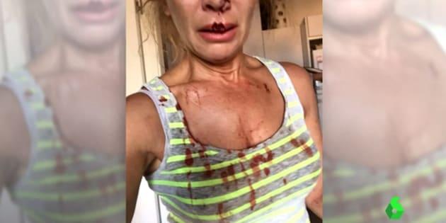 La víctima del ataque, en una de las imágenes de su denuncia.