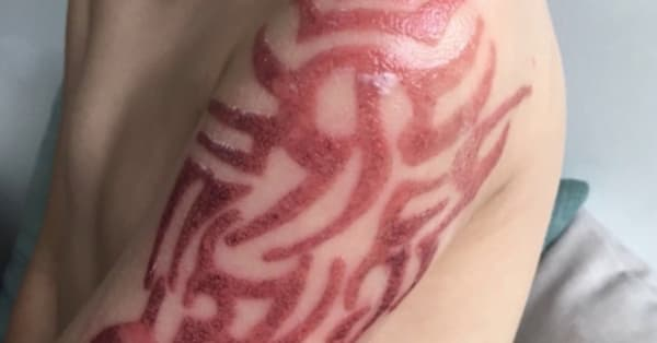 Five Year Old Boy Suffers Allergic Reaction To Henna Tattoo Aol News