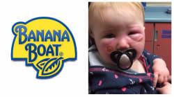 Banana Boat cause-t-il vraiment des