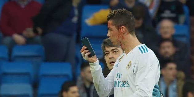 """Le visage en sang, Ronaldo se fait un """"selfie"""" pour constater les dégâts"""