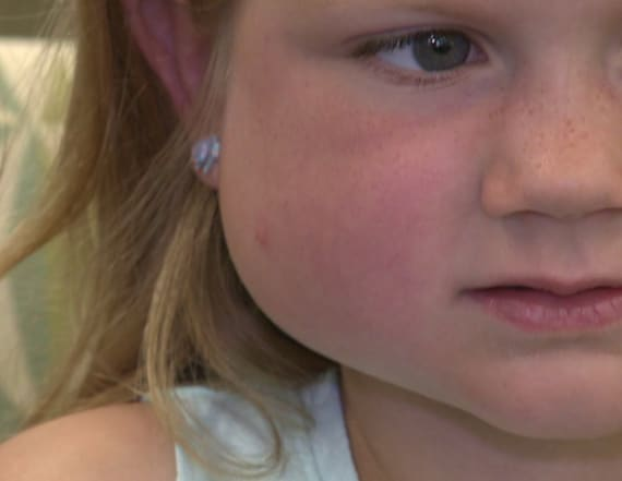 5-year-old's 'bug bite' leads to diagnosis