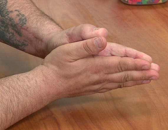 Man's thumb replaced with his big toe