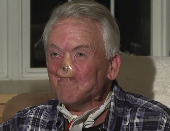 Doctors save man whose face was ripped off by bear
