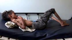 Infierno en Yemen: más de 80.000 niños han muerto de hambre en cuatro