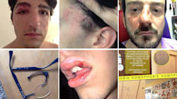 Les récits d'agressions qui se succèdent révèlent-ils une vague homophobe sur