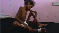 La hambruna de los niños de Yemen molesta a