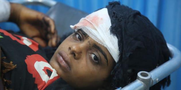 Le 9 juin 2018, au Yémen, une jeune fille blessée reçoit des soins à l'hôpital Althawra, à Hodeidah.