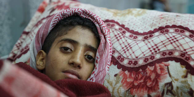 A young boy lies in the emergency room awaiting treatment for suspected cholera at the Al-Joumhouri Hospital, Sana'a, Yemen, on May 3, 2017.