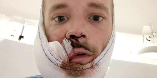 David, 31 ans, a été touché par un tir de flashball lors de la manifestation parisienne des gilets jaunes, le 1er décembre 2018.