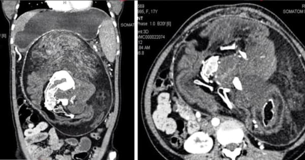 Doctors find 'twin' growing inside 17-year-old girl's stomach