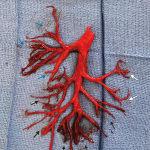 Un homme crache un caillot de sang de la forme de son arbre bronchique
