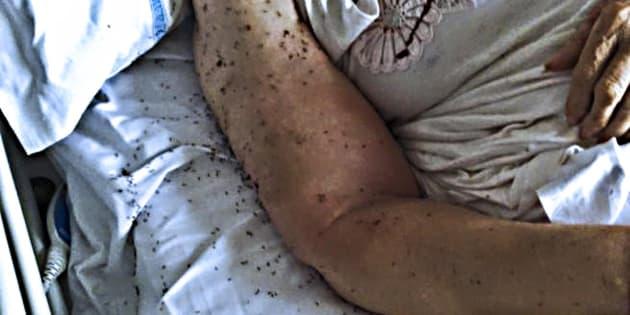 In un letto di ospedale infestato da centinaia di formiche. E' l'immagine diffusa dal consigliere regionale dei Verdi della Campania, Francesco Emilio Borrelli, di una degente ricoverata nell'ospedale San Paolo di Napoli, 12 giugno 2017. ANSA
