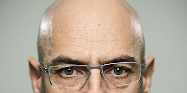 Short, white men are more likely to go bald