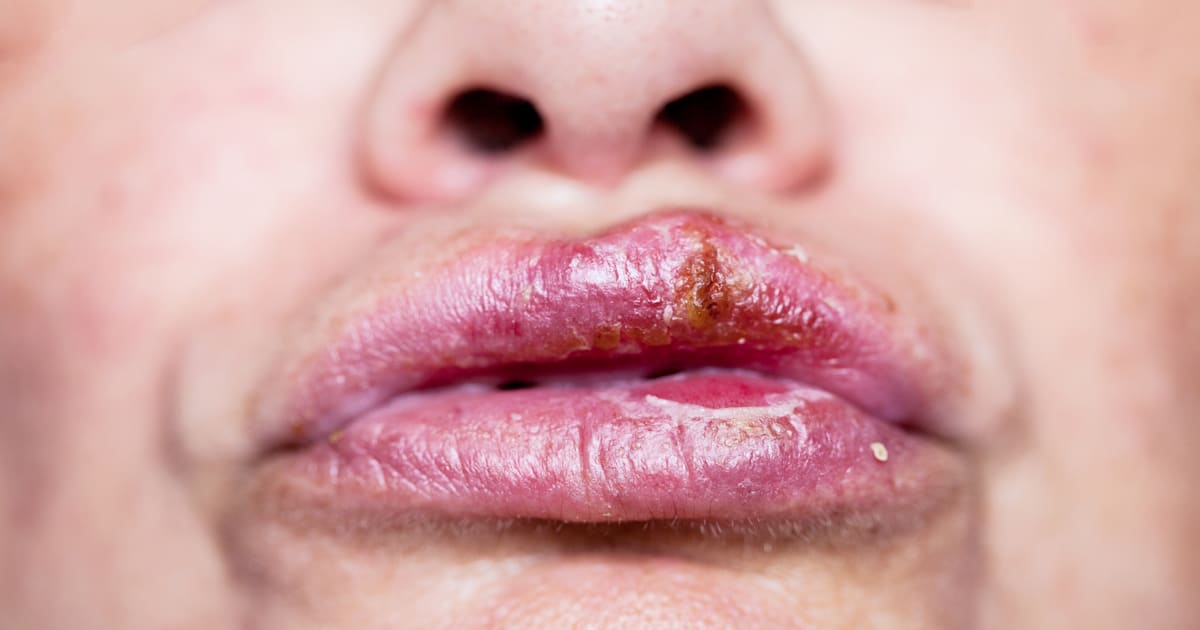 Herpes how to of get rid facial