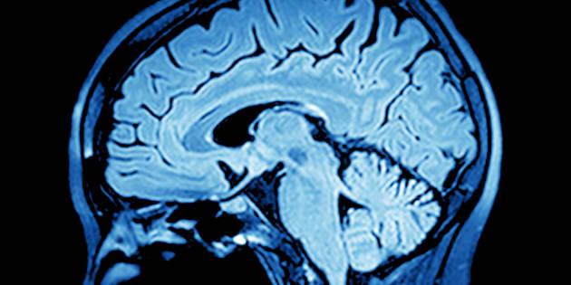 Photo: un cerveau vu via la technologie d'imagerie par résonance magnétique.