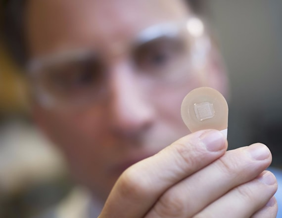 Pain-free 'microneedle' patch may replace flu shots