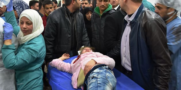 An injured Syrian girl lies on a stretcher at a hospital in the government-held side of west Aleppo, on November 20, 2016, following reported rocket fire by the opposition forces that hold the eastern part of the city.   At least seven children were killed by rebel rocket fire that hit a school in the government-held west of Aleppo city, state media said. Government forces are currently waging a ferocious assault against east Aleppo, targeting it with air strikes, barrel bombs and artillery fire.   / AFP / GEORGE OURFALIAN        (Photo credit should read GEORGE OURFALIAN/AFP/Getty Images)