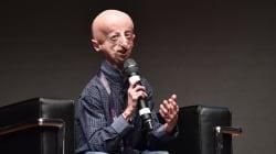 Sammy vince un'altra battaglia: è la prima persona affetta da progeria a subire un intervento al