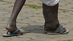India Is Set To Fail Its Target Of Eradicating Filariasis By