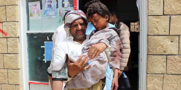 Un hombre desplaza a un hospital un niño herido en un bombardeo saudí en la zona rebelde de Saada, el pasado agosto.