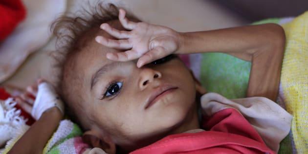 Un niño yemení malnutrido yace en una cama de un centro de tratamiento en Sanaa.