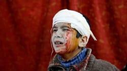 Syrie: six hôpitaux bombardés en deux