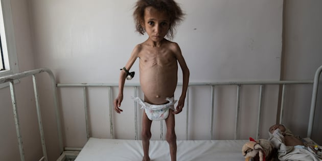 AL JOUMHOURI HOSPITAL, YEMEN -  24 APRIL 2017: Batool Ali, aged 6, stands on a hospital bed. Batool suffers from severe acute malnutrition.