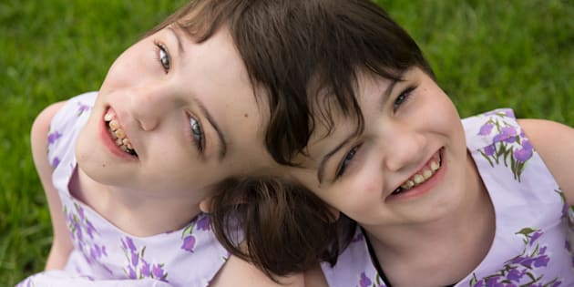 Tatiana and Krista Hogan are craniopagus twins who live with their family in Vernon, B.C.