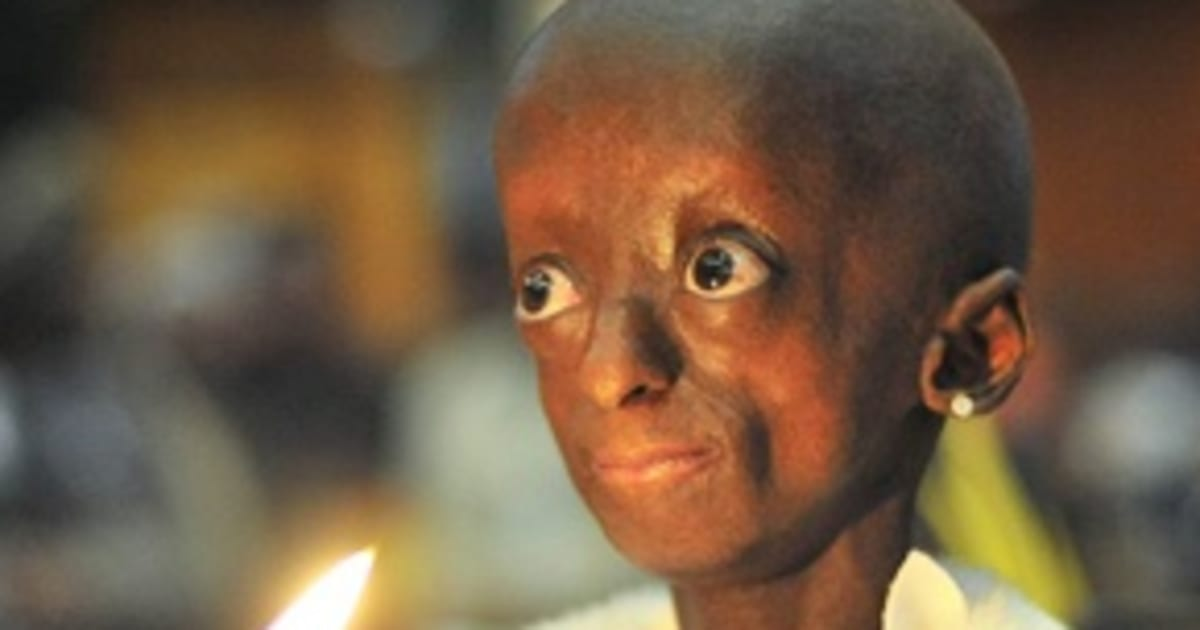 term paper on progeria The progeria research foundation helped in the discovery of the gene that causes progeria, and is now involved in clinical drug trials, testing drugs that show great promise to effectively treat children with progeria we have made tremendous progress, but no one can predict how long that will take.