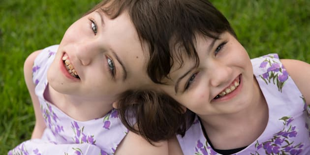 Tatiana and Krista Hogan are craniopagus twins who live with their family in Vernon, B.C.