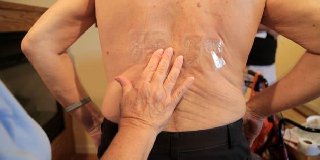 O mieloma múltiplo é um tipo raro de câncer na medula óssea.