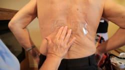 Câncer raro de medula óssea ainda é desconhecido e negligenciado no