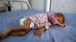 Yemen alcanza un millón de casos probables de cólera: Cruz