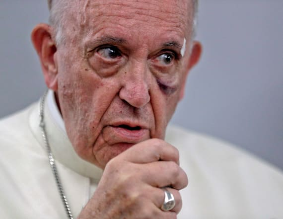 Pope candidly admits Church confronted abuse late