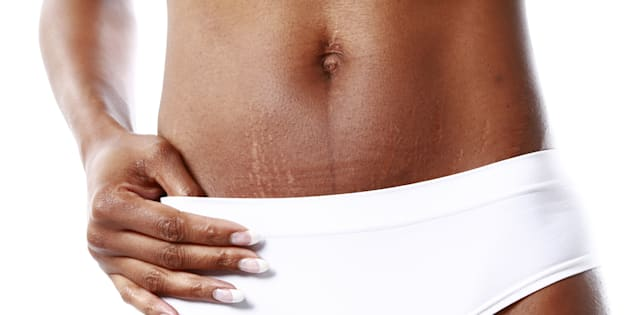 """""""Like most women, I have been conditioned to think that stretch marks are something to be ashamed of."""""""