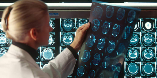 Un médecin examine les résultats d'un scanner d'une victime d'un AVC.