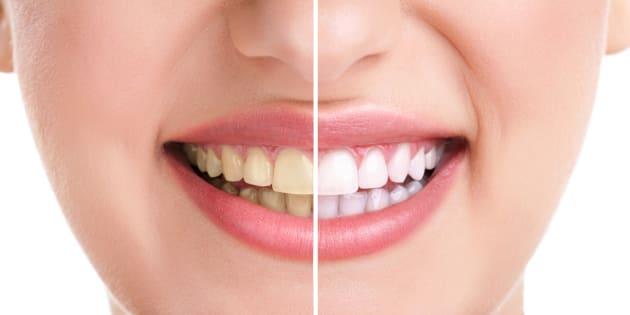 Avoir des dents jaunes est l'un des pires défauts d'un sourire pour plus d'un Français sur deux