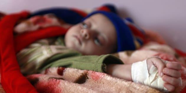 Un niño malnutrido recibe tratamiento en el hospital Al-Sabyeen de Sanaa, la capital de Yemen, en una imagen de archivo.