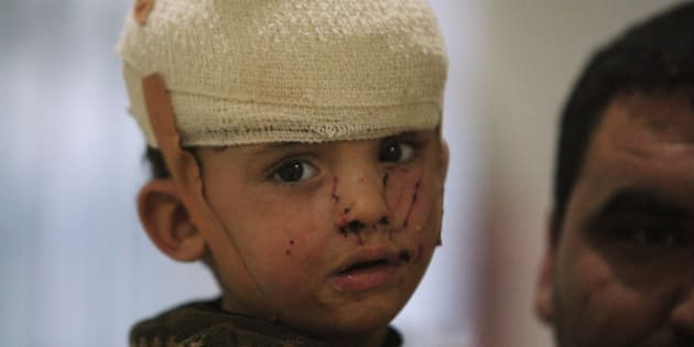 A displaced child who was injured in clashes and fleeing from Islamic State militants of Mosul, receives treatment at a hospital west of Erbil, Iraq.