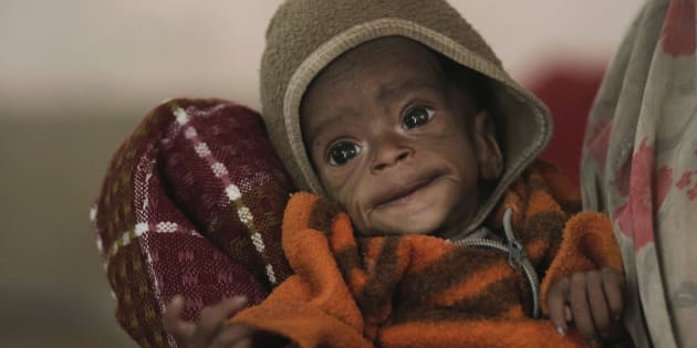Four-month-old Vishakha, who weighs 2.3 kg (5 lbs) and suffers from severe malnutrition, is carried at the Nutritional Rehabilitation Centre of Shivpuri district in the central Indian state of Madhya Pradesh February 1, 2012.