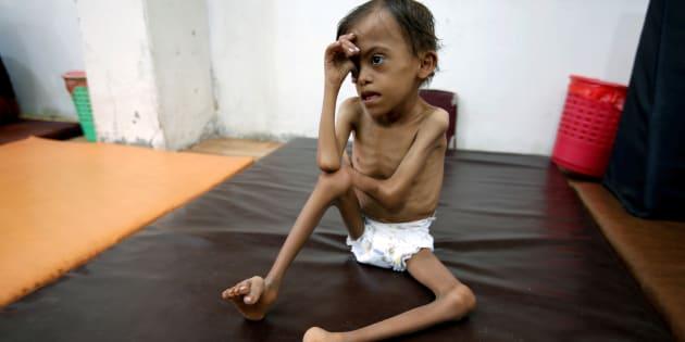 Marwan Ahmad Mahyoub, un niño desnutrido de 10 años, esperando a ser atendido en un hospital de Hodeidah, en Yemen, el pasado 19 de agosto.