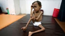 815 millones de personas pasan hambre en el