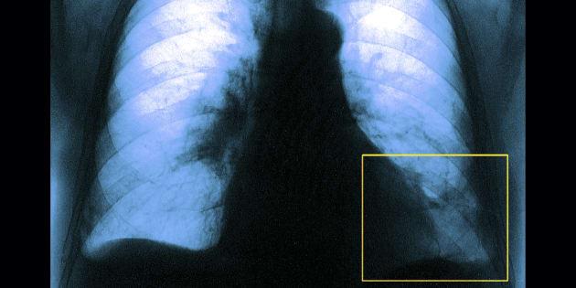 Caillot de sang dans le lobe gauche des poumons.