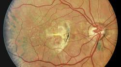 Avance contra la ceguera: ratas recuperan la visión gracias a un transplante