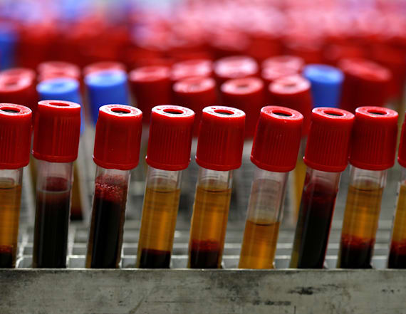 New blood test detects concussions with X-rays